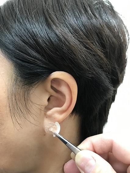 花粉症耳つぼ